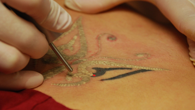 Come rimuovere un tatuaggio laser? 2